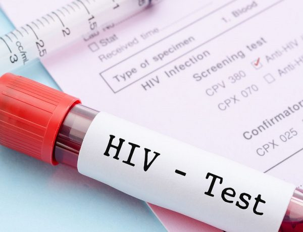 test HIV gratis unione europea