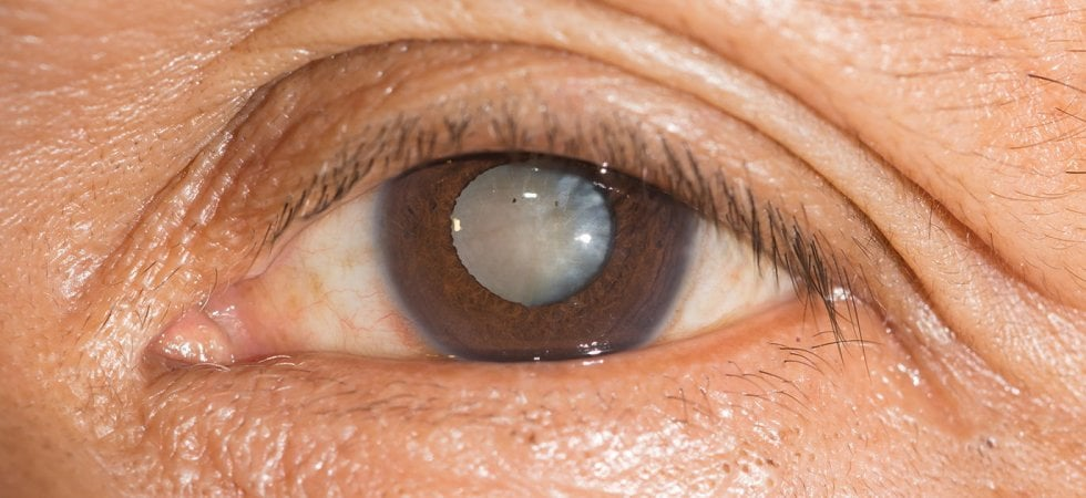 Desametasone intracanicolare efficace nel ridurre il dolore post-intervento alla cataratta: lo studio al congresso dell'American Academy of Ophthalmology